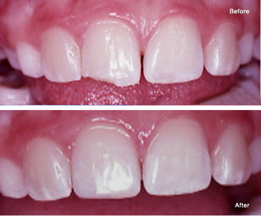 Repair of a Chipped Tooth with a Simple Bonded Composite