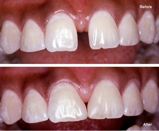 Closing a Space (Diastema) with a Simple Bonded Composite Fill