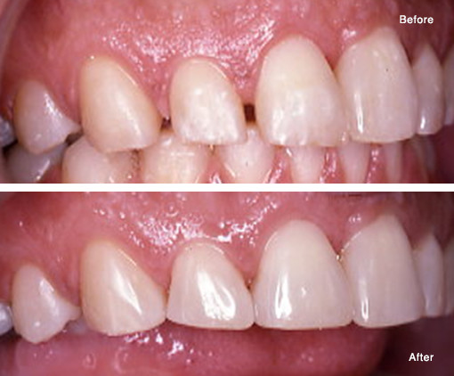 Closing a Space (Diastema) with Porcelain Veneers