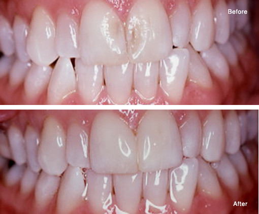 Repair of Eroded Enamel with a Simple Bonded Composite Fill