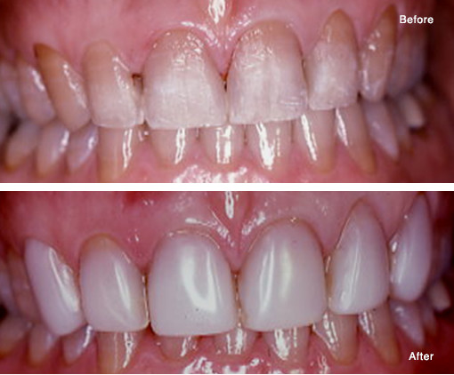 Tetracycline Stained Teeth Masked with Bonded Composite Veneers